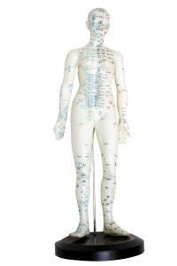 Akupunktio hoito Kätilötalo